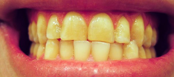 Teeth grinding causing pain